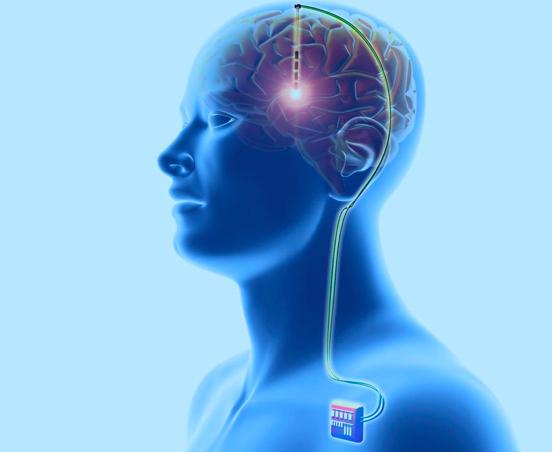 全面解读深部脑刺激治疗帕金森疾病的研究进展