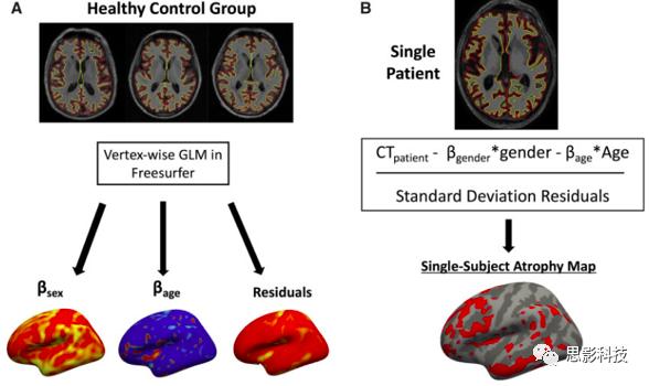 阿尔茨海默临床、认知和神经精神症状的脑网络