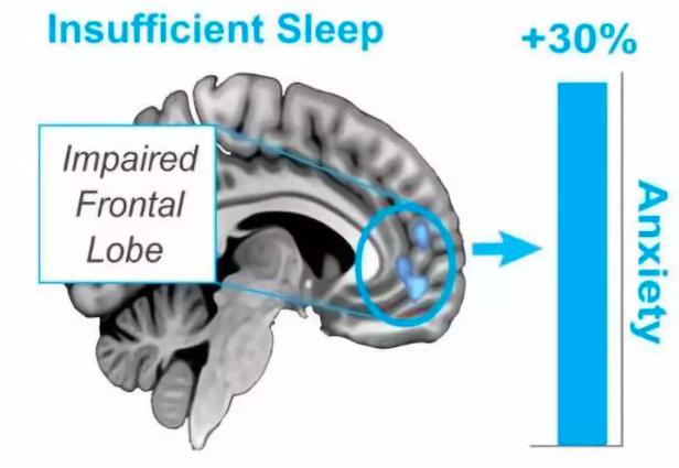 拯救焦虑的大脑?试试深度睡眠吧