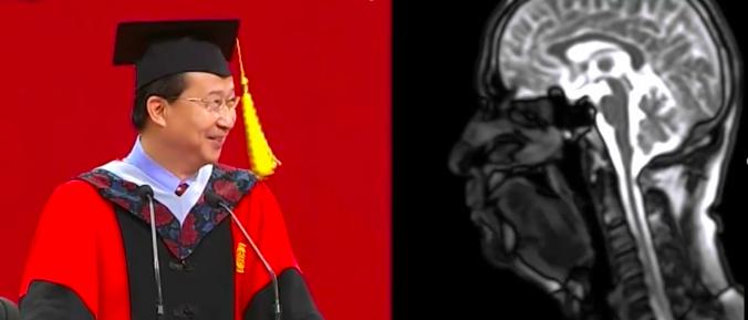 饶毅:脑、物理、化学、生物、心理认知的交叉