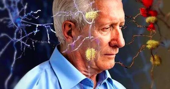 阿尔茨海默症和老年痴呆症的区别